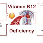 قروش ویتامین ب12