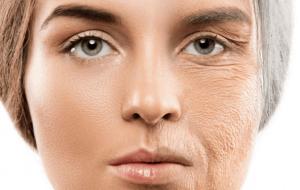 12 مورد از بهترین غذاها برای حفظ سلامتی پوست